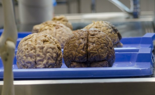 Kenya doctor performed brain surgery on wrong patient