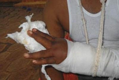 victime de la repression du 28 Septembre 2009