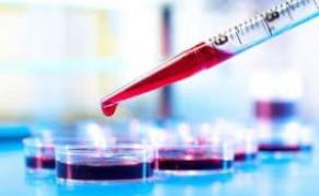 L'OMS va tester un vaccin antipaludique dans trois pays africains