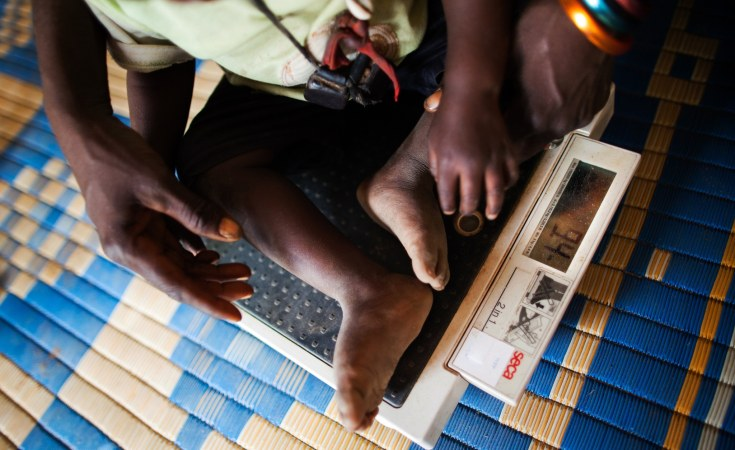 Global malnutrition puts more at risk for coronavirus disease